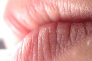 How-To-Prevent-Lips-From-Being-Dry-And-Chapped_1-300x199